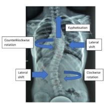 X-Ray of Spinal Scoliosis