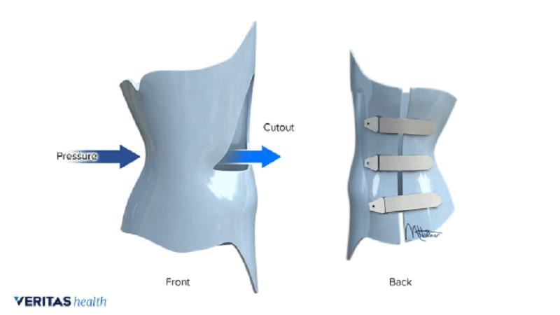Scoliosis brace Cutout