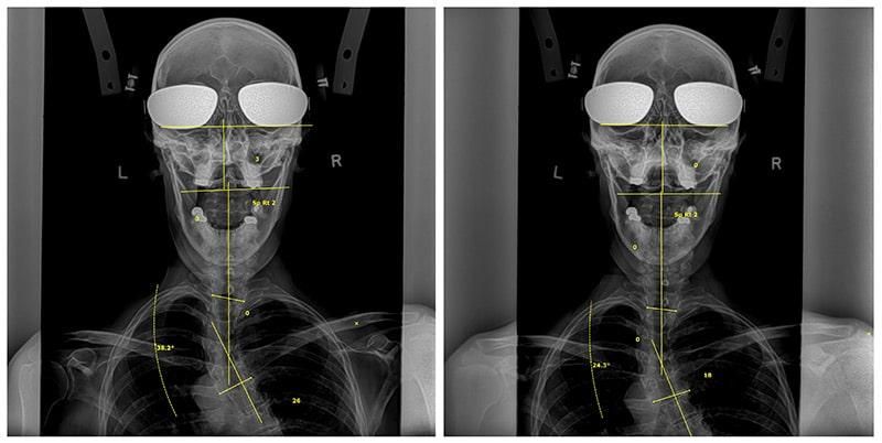 Dr. Dennis Woggon Before & After 5