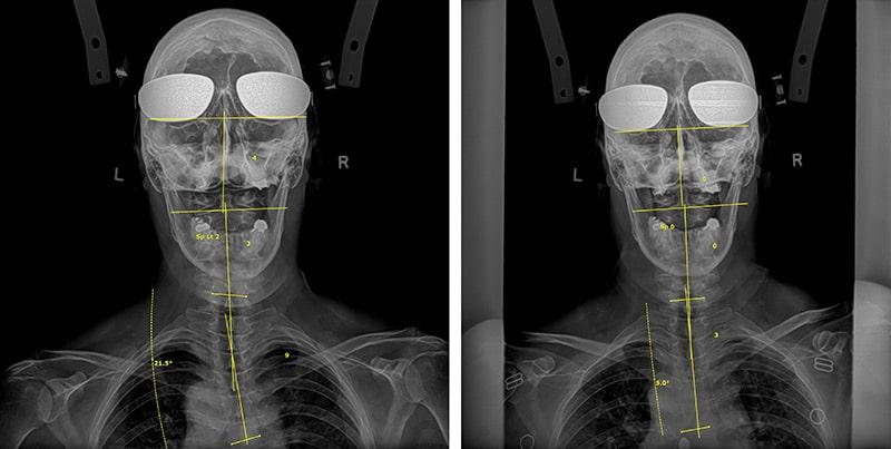 Dr. Dennis Woggon Before & After 6