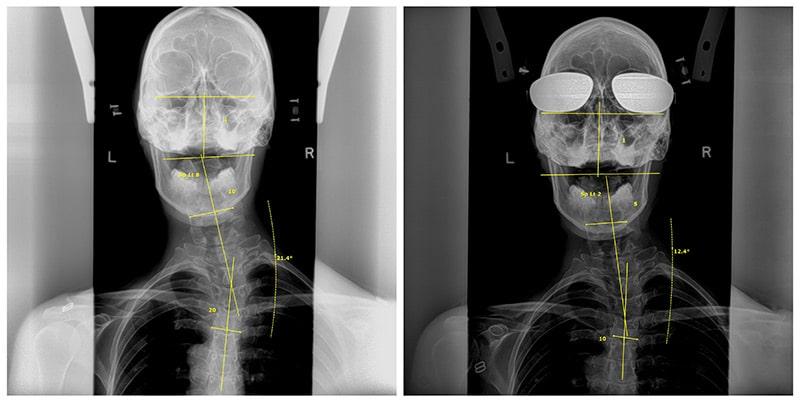 Dr. Dennis Woggon Before & After 7