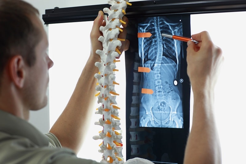 Scoliosis x-ray should be taken from a certain distance.
