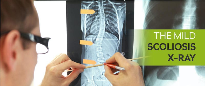 The Mild Scoliosis X-Ray Image