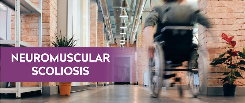 Neuromuscular Scoliosis Image