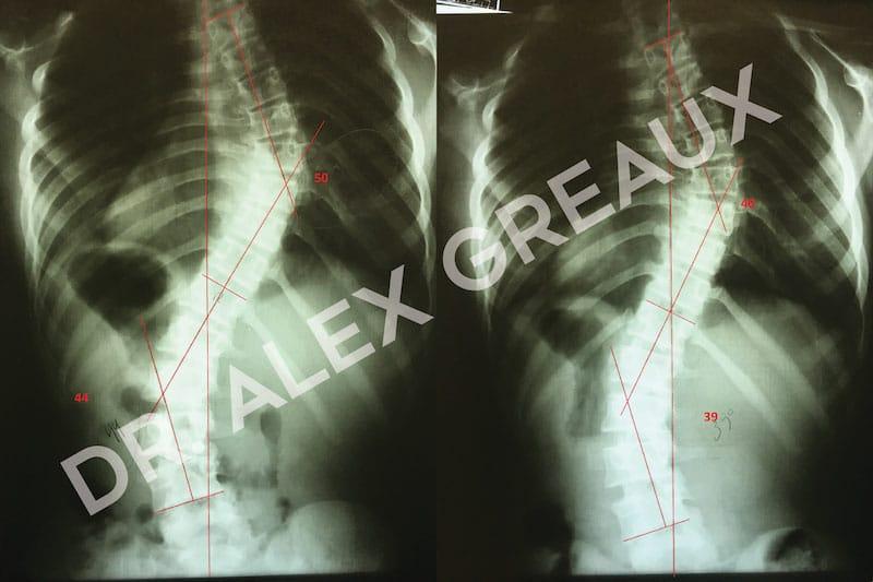 Dr. Alexander Greaux Before & After 1