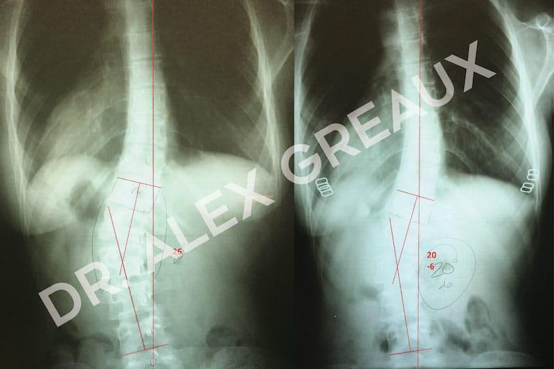 Dr. Alexander Greaux Before & After 2