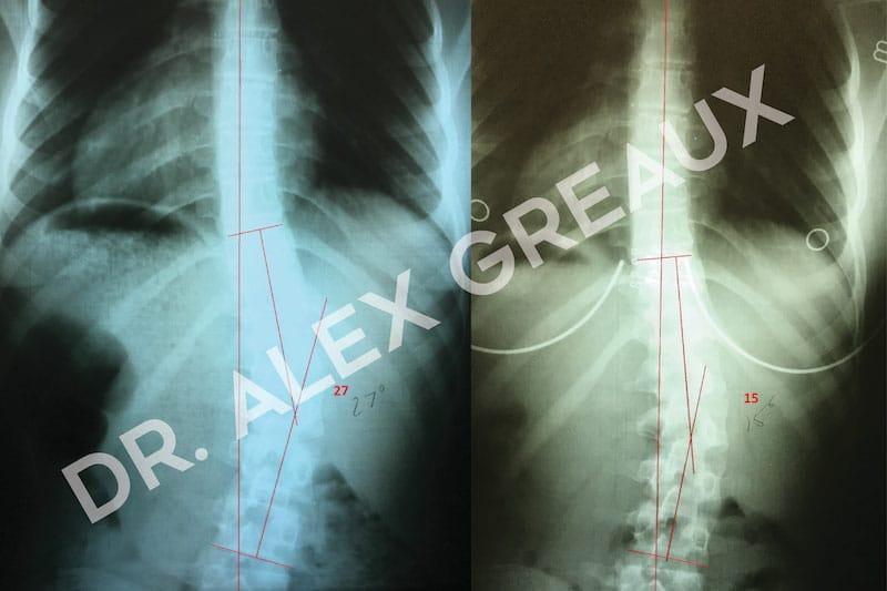Dr. Alexander Greaux Before & After 3