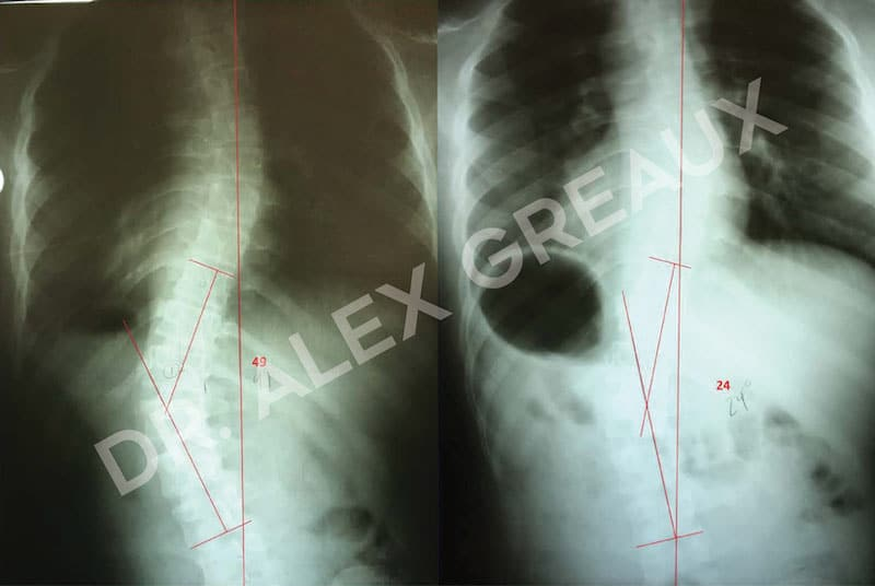 Dr. Alexander Greaux Before & After 4