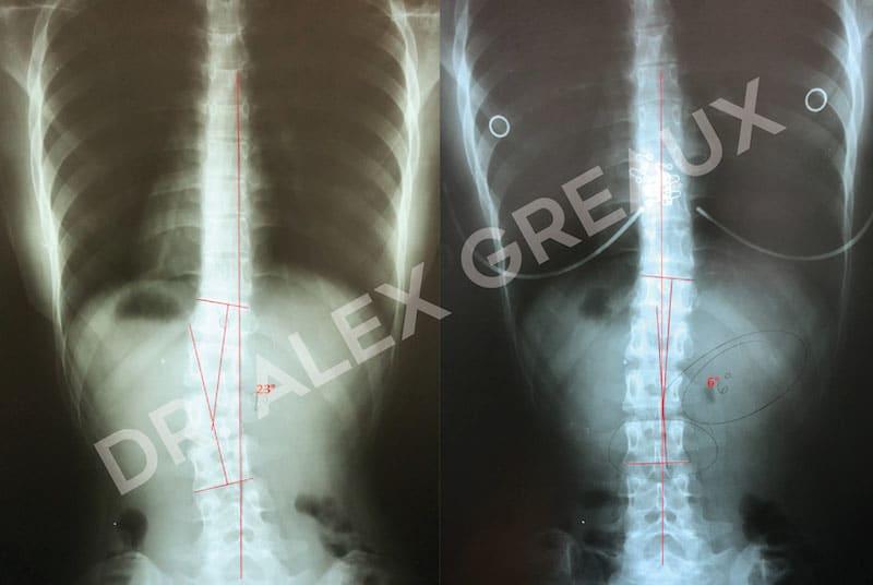Dr. Alexander Greaux Before & After 6