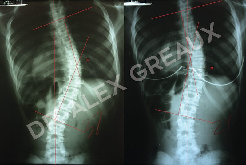 Dr. Alexander Greaux Before & After 7