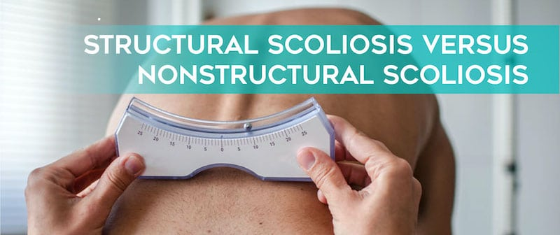 Structural Scoliosis vs Nonstructural Scoliosis Image